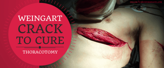 SMACC: Weingart on Thoracotomy