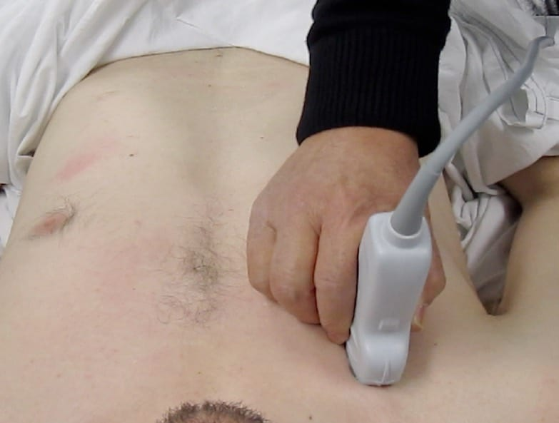 D. Scanning the right upper BLUE point, supine patient