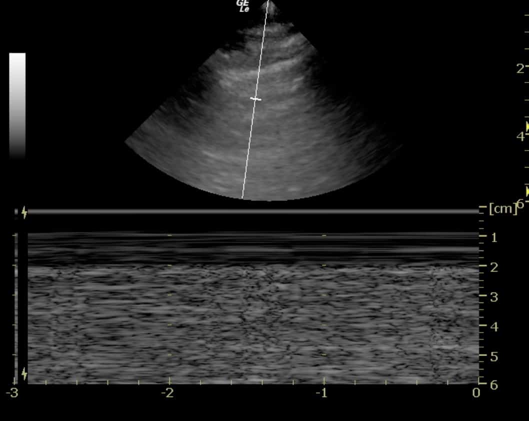 Lung Ultrasound Fig 5: M-mode image, seashore sign (normal lung)