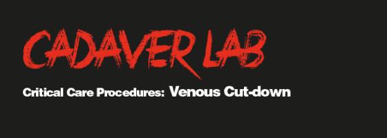Venous Cut-down-01