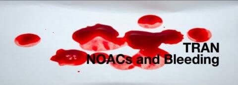 NOACS