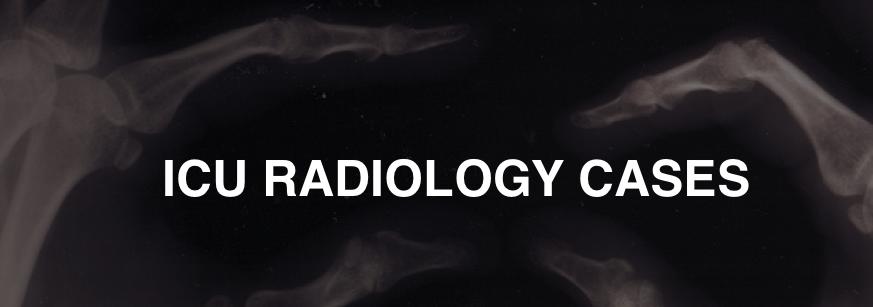 Radiology Case 10