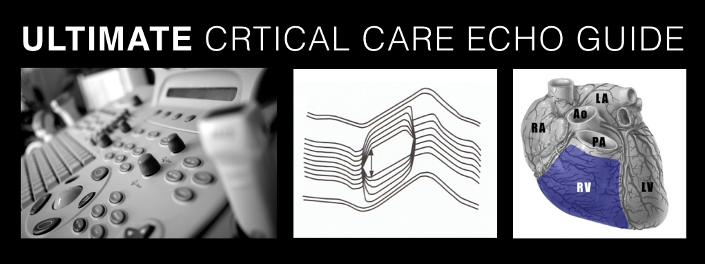ULTIMATE Critical Care Echo Guide
